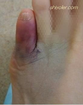 足指を柱の角で強打しました